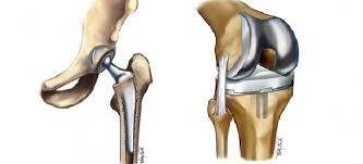 Replacement of knees & hips influences treatment