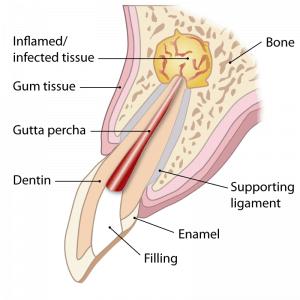Apicectomy surgery