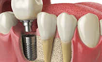 Bone Grafting May Be Required