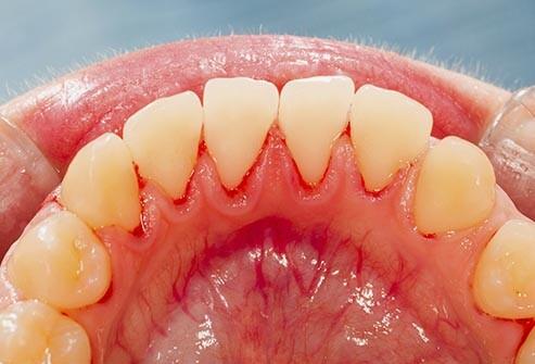 Australian's dental health is getting worse!