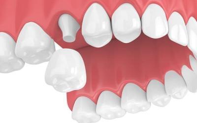 Dental Crowns – PH-34