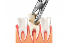 Information concerning tooth extraction & oral surgery – PH-38