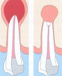 Root canal treatment and apicectomy – PH-45