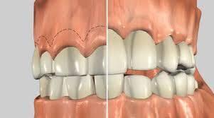 Crown-lengthening Surgery – PH-48